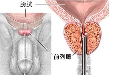 男性患上前列腺炎疾病对身体的危害